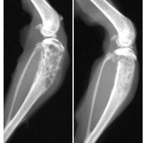 Bone metastases in breast cancer