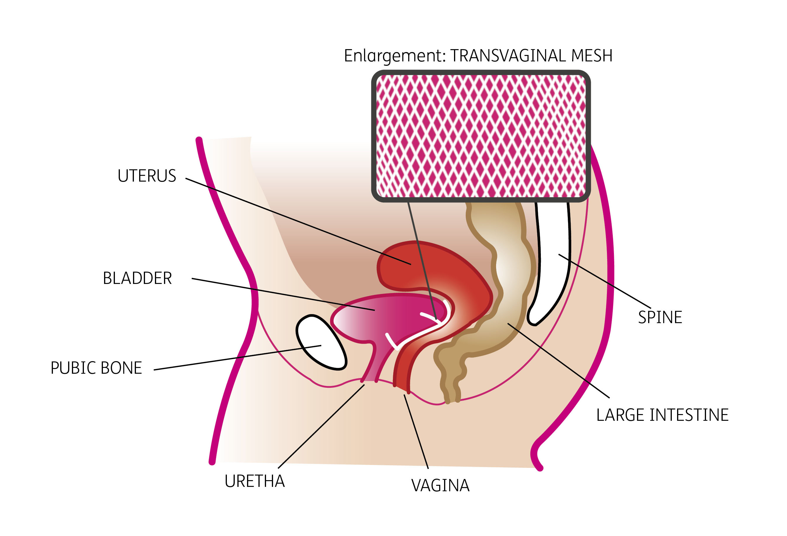Description of vaginal suspension procedure