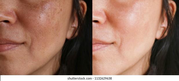 Brown facial spot treatment