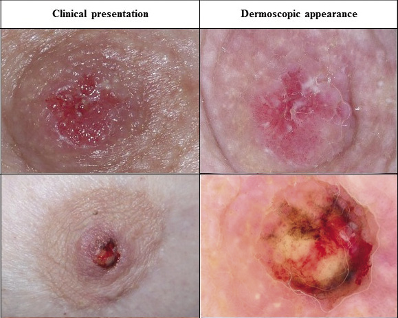Compare normal breast to pagets disease