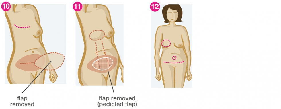 Breast swelling and rupture