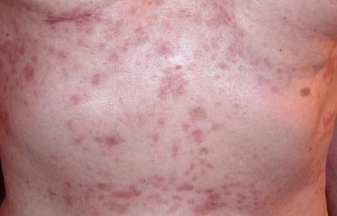 Yeast infection facial rash fever