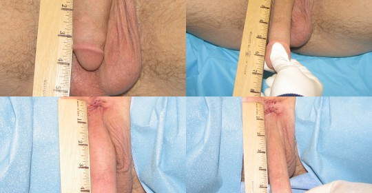 Pictures penis before after enlarge an
