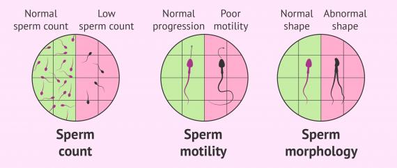 Sperm count low motility