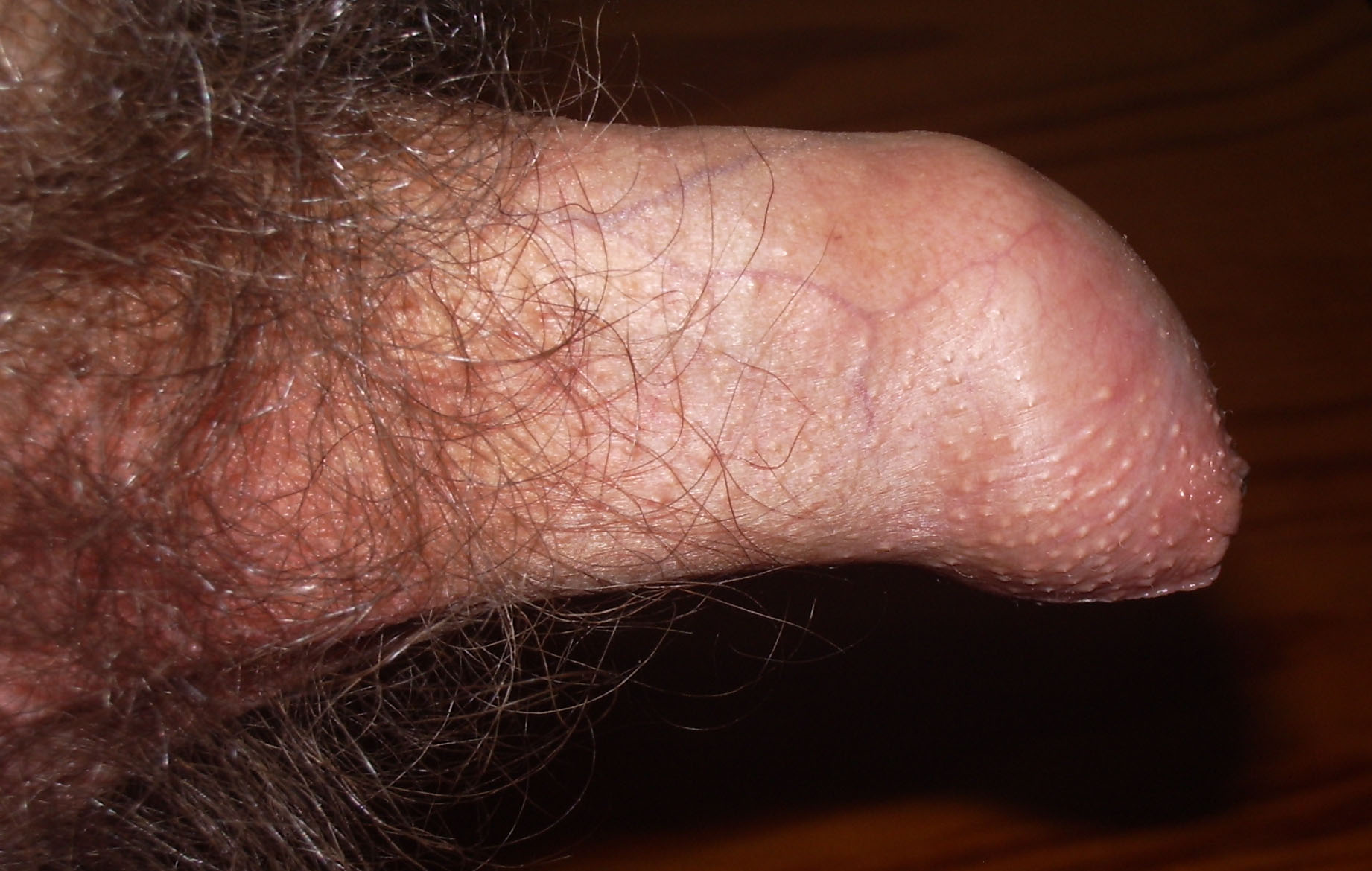 Penis infection scar tissue stretch