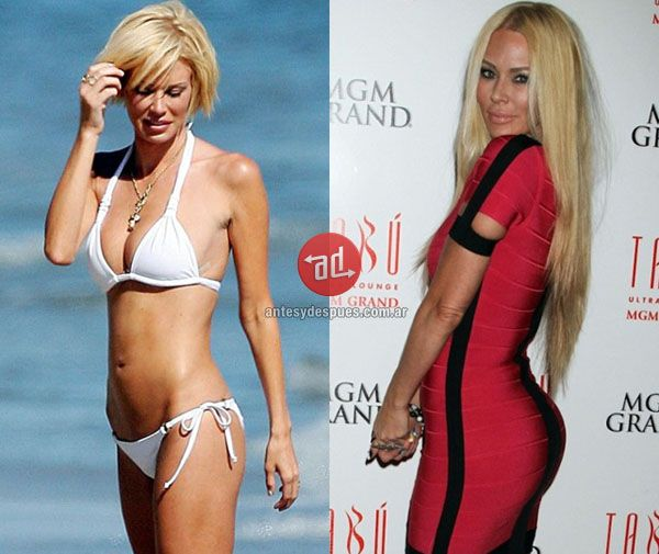 Breast jenna reduction jameson