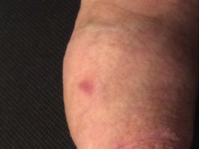 Dark red spots on penis head pictures